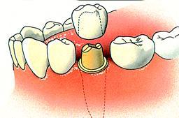 Tandheelkundige kroon
